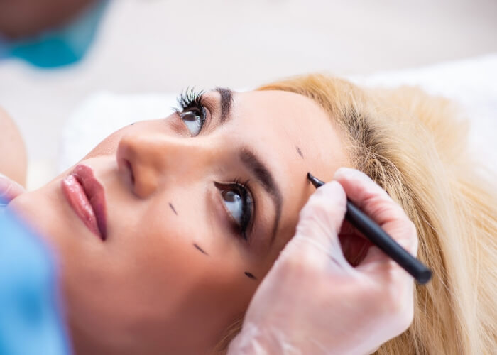 Young woman laying on an exam table while a doctor marks the area for her ocuplastic surgery